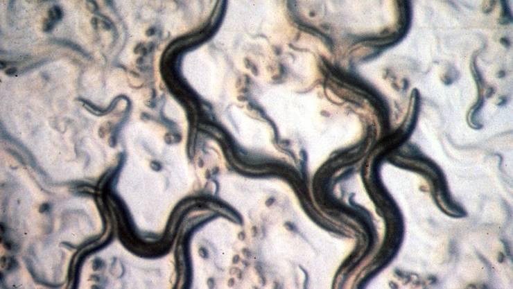 Der Fadenwurm Caenorhabditis elegans sieht bescheiden und ein bisschen eklig aus - aber er versorgt Forscher immer wieder mit Einsichten. Die neueste: Zwei Ribonukleinsäuren genügen, um aus einem ungeordneten Zellhaufen einen wohlgestalteten Embryo zu machen. (Archivbild)