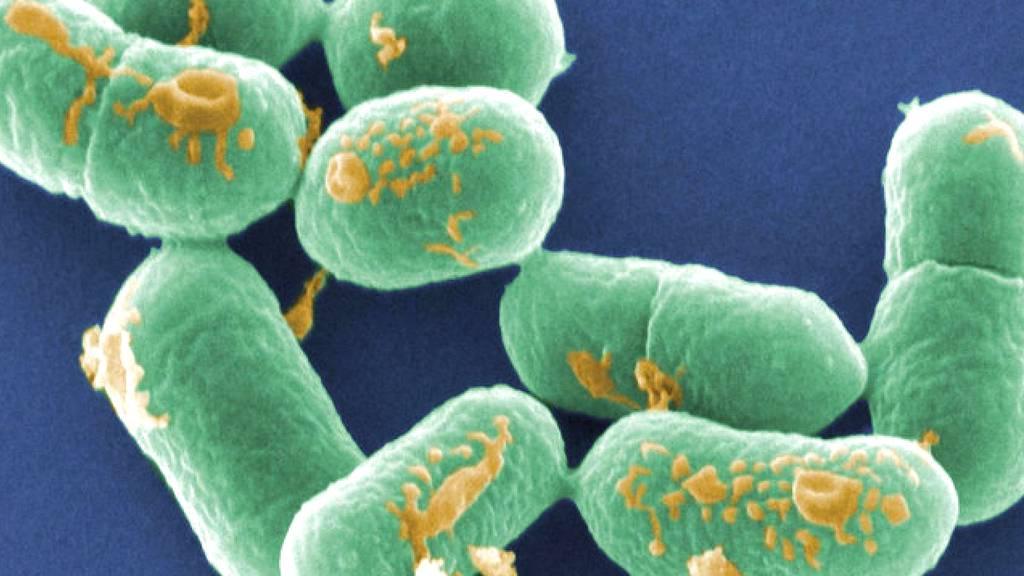 Wie schützt man sich vor einer Listeriose?