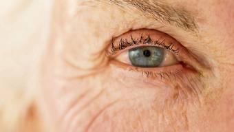 Im Ausland wird das günstigere Avastin gegen die Altersblindheit namens AMD häufig eingesetzt. Nicht so in der Schweiz. Hier wird das teurere Medikament Lucentis verwendet .