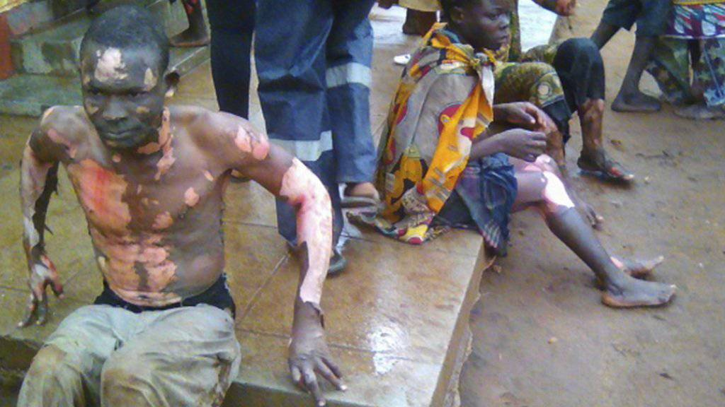 Staatstrauer in Mosambik: Die Explosion eines Tanklastwagens hat am Donnerstag zu zahlreichen Toten und Verletzten geführt.