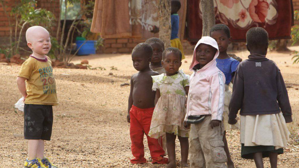 Ein Albino-Junge mit schwarzen Kindern in der malawischen Ortschaft Machinga (Archiv)