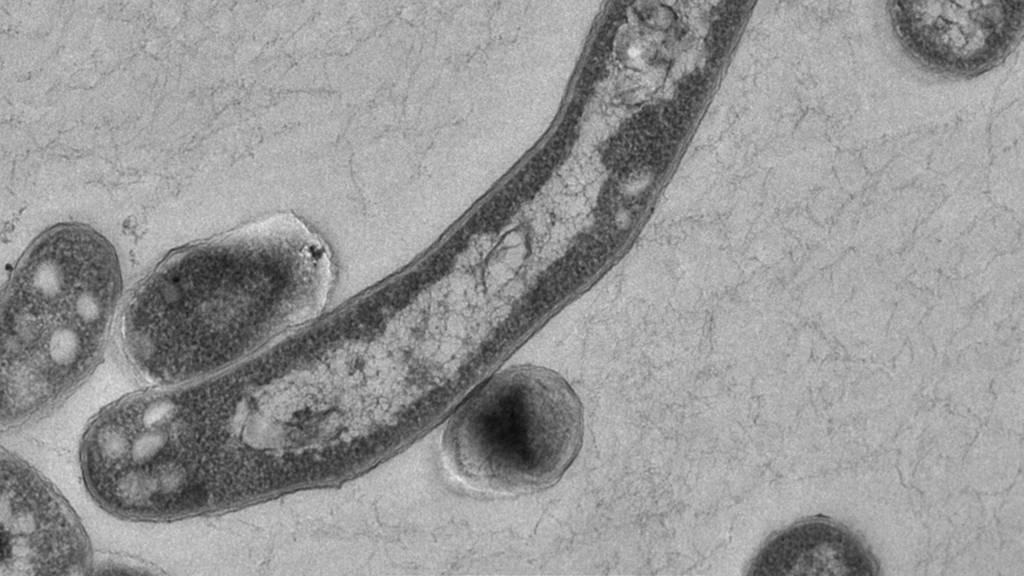 Primarschülerin mit Lungen-Tuberkulose im Spital