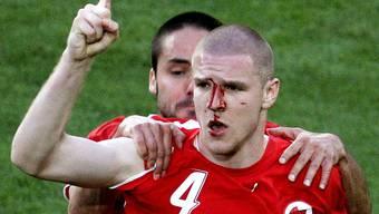 Ein Bild, das um die Welt geht: Philippe Senderos jubelt mit blutendem Gesicht.