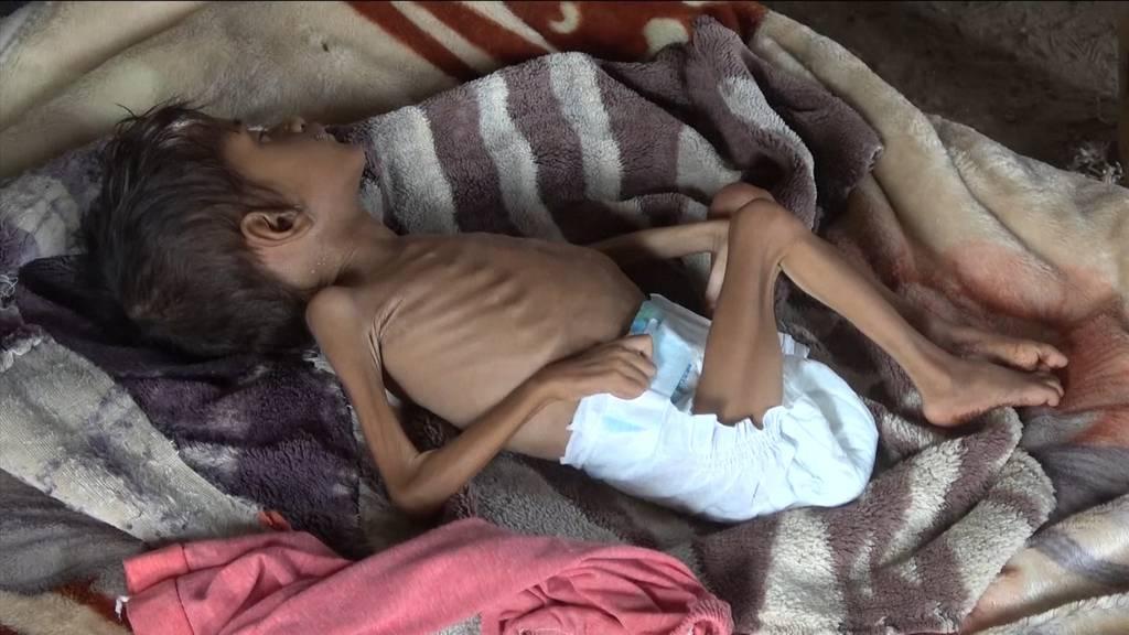 Jemen befindet sich derzeit im «dunkelsten Moment»