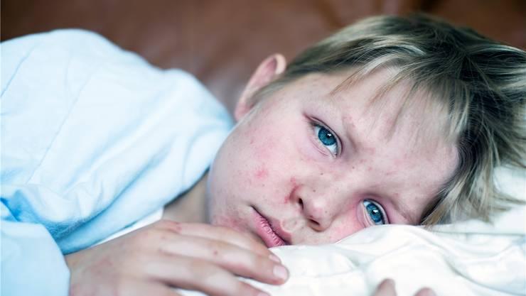 Erkrankungen an Masern, wie sie aktuell in der Region Biel auftreten, sind in der Schweiz wegen der hohen Impfrate selten geworden.Getty Images (Symbolbild)