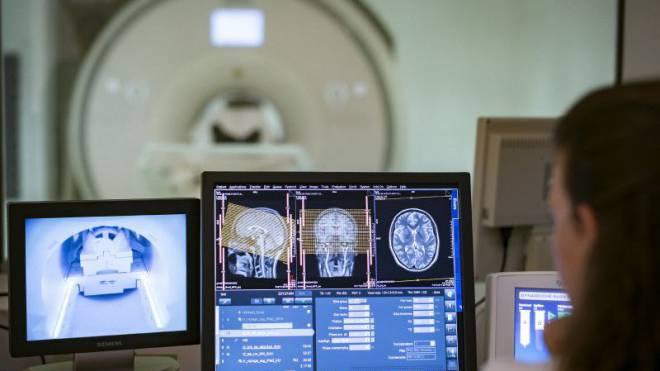 Das Basler Unispital verabreichte Dutzenden Studenten LSD und untersuchte sie dabei im Kernspintomographen. Foto: Kenneth Nars
