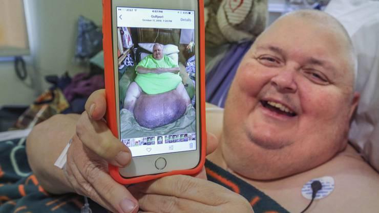 59-Kilo-Tumor: Roger Logan zeigt auf ein Foto, wie er vor der Operation ausgesehen hat.