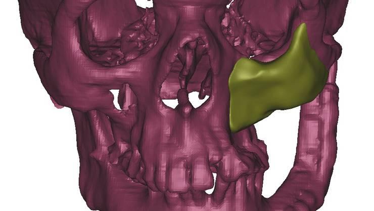 Digital geplante Knochenersatz-Struktur, welche mit dem «3D-Drucker» gebaut und eingesetzt wurde
