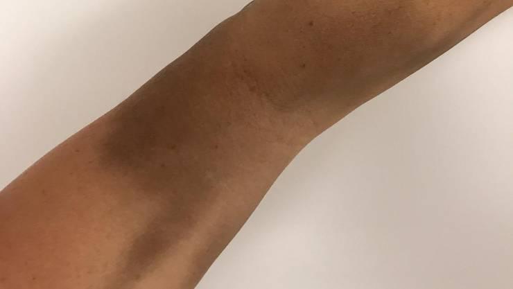 Der verfärbte Arm kurz nach der Eisentransfusion.