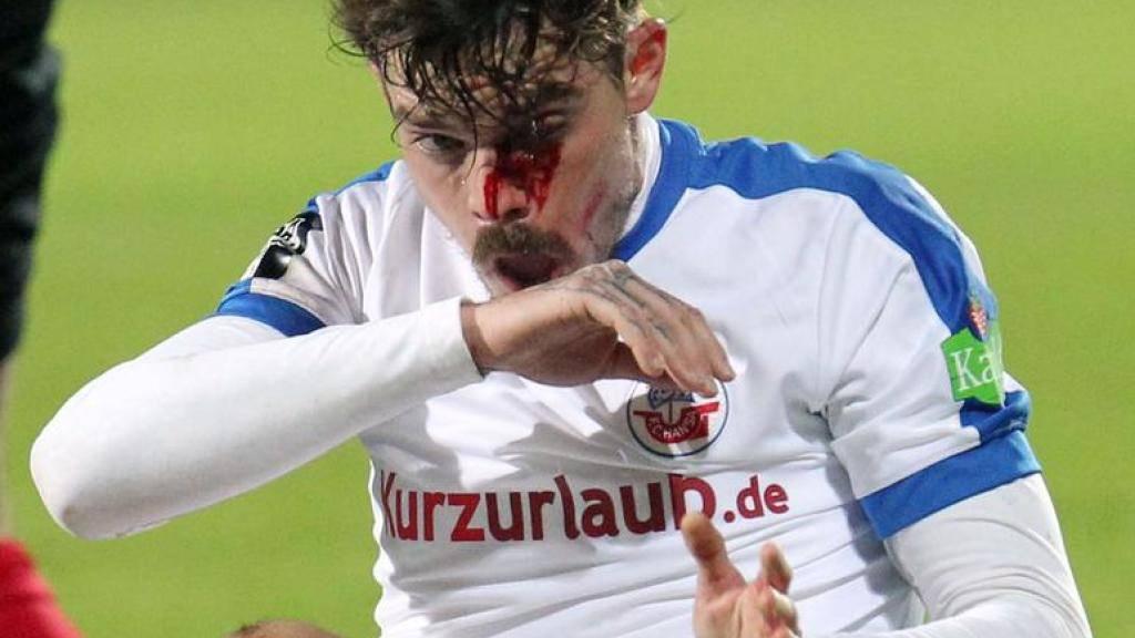 Wird die Partie in Wiesbaden so schnell nicht vergessen: Dennis Erdmann nach der verheerenden Szene