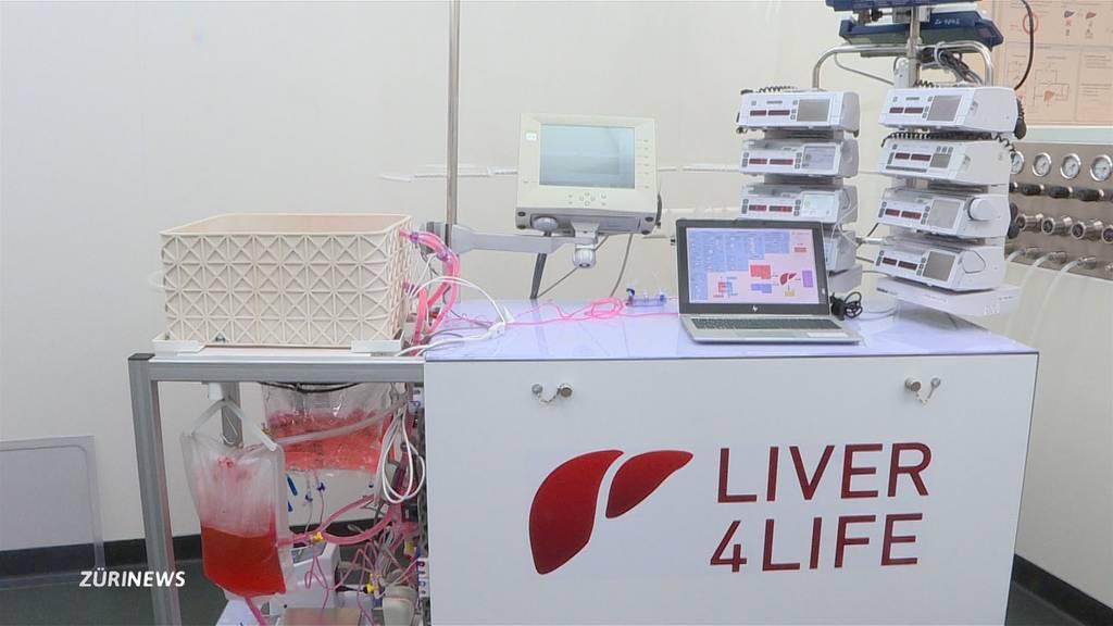 Unispital gelingt Durchbruch: Leber-Maschine kann Leben retten