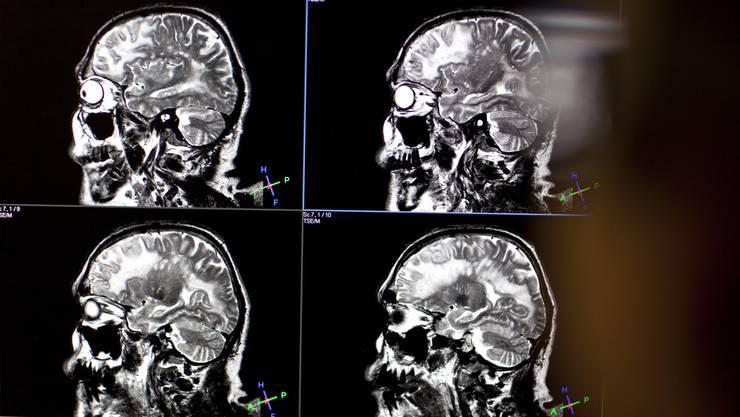 Ein Forschungsteam um Peter Scheiffele vom Biozentrum der Uni Basel hat nämlich entdeckt, dass bei der Entwicklung des Gehirns viele Nervenverbindungen falsch geknüpft werden und anschliessend wieder gekappt werden müssen.