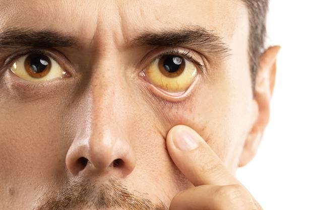 Eine gelbe Sklera ist ein typisches Symptom bei Sichelzellanämie – sie kommt aber auch  bei einer Reihe anderer Krankheiten vor.