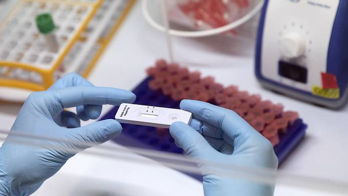 Das BAG meldet am Freitag 2156 neue Ansteckungen mit dem Coronavirus. (Symbolbild)