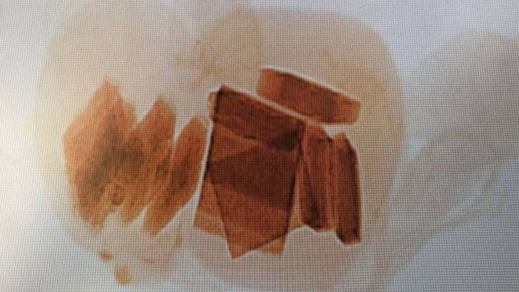 Die Röntgenaufnahme brachte es zum Vorschein: In Kopf und Bauch des Teddybären waren mehrere Blöcke Marihuana eingenäht.