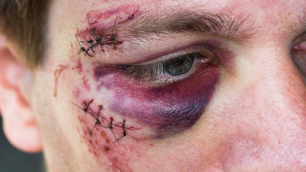 Symbolbild: Der verunfallte Velofahrer musste wegen Verletzungen im Gesicht ins Spital.