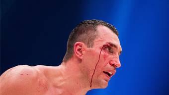 Gezeichnet von den Treffern des Briten - Klitschko bei seiner Niederlage gegen Tyson Fury.