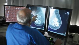 Es soll ein Mammografie-Screening (im Bild) und Dickdarmkrebs-Screening geben. (Archiv)