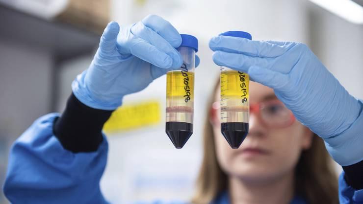 Drei Impfstoffe stehen vor der baldigen Zulassung.