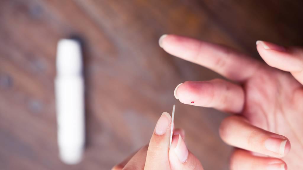 Der HIV-Schnelltest zeigt nach 15 Minuten das Ergebnis. (Symbolbild)