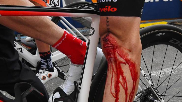 Das arg lädierte Knie, welches Tom Dumoulin im Giro zur Aufgabe zwang