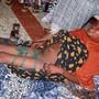 Genitalverstümmelung beeinträchtigt nicht nur schwer die  Gesundheit betroffenen Mädchen und Frauen, sie belastet auch die Gesundheitsbudgets der Länder, in denen diese Praxis verbreitet ist. Auf dem Bild ein 9-jähriges Mädchen einige Tage nachdem ihre Genitalien verstümmelt wurden.