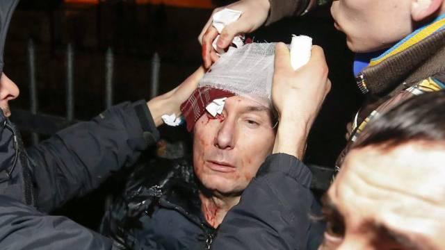 Der verletzte frühere Minister Luzenko in Kiew