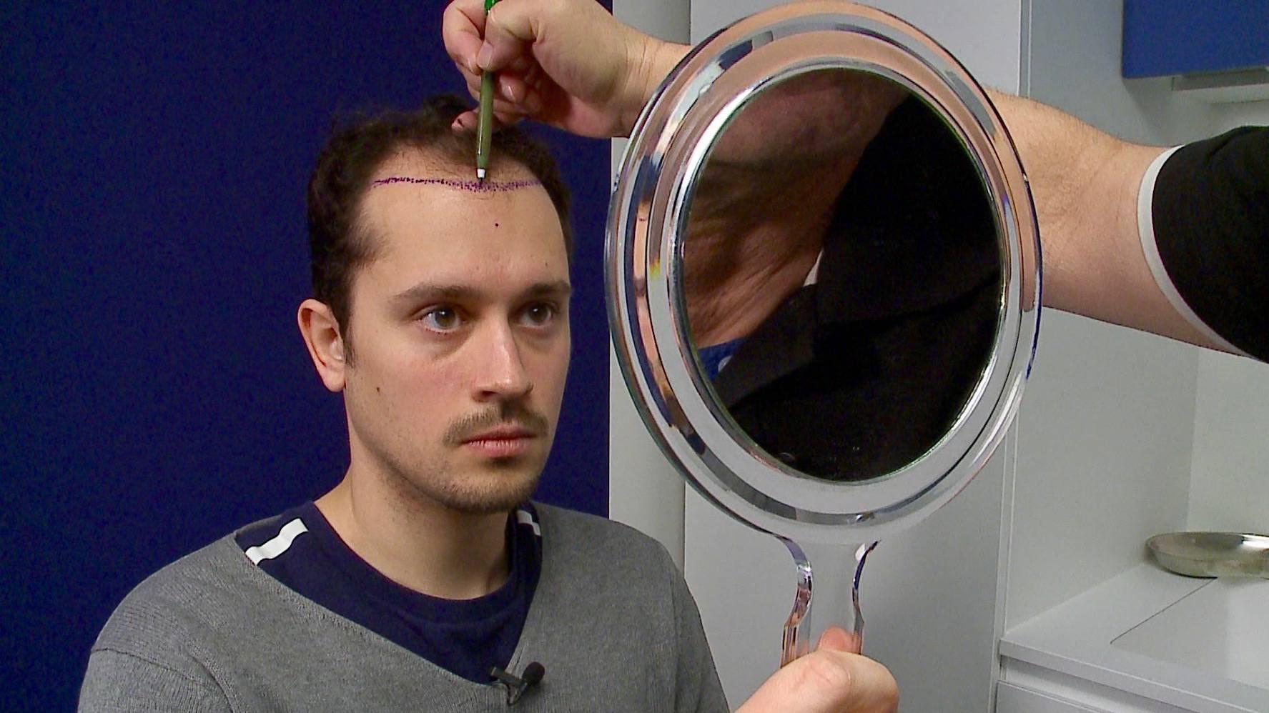 Skinmed Haartransplatation