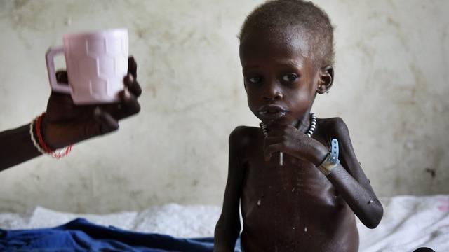 In Entwicklungsländern ist der Hunger besonders gross (Archiv)