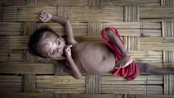 Unterernährung ist nur die halbe Bürde von armen Ländern. Die andere Hälfte ist die Überernährung bei gleichzeitigem Nährstoffmangel zum Beispiel durch minderwertige Fertigkost. (Symbolbild)