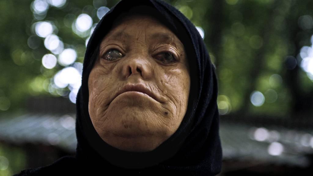 Heute ist Welt-Lepra-Tag – und kaum einen interessiert es