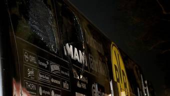 Beim Anschlag auf den BVB-Teambus wurde am Dienstag ein Spieler verletzt.