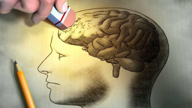 144 000 Menschen in der Schweiz sind aktuell an Demenz erkrankt. Ob und wie Alzheimer aufgehalten werden kann, ist nach wie vor unklar.