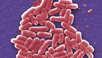 """Im französischen Rohmilchkäse """"Reblochon de Savoie Fermier le grand Bornand"""" wurden Bakterien nachgewiesen, die Magen-Darm-Erkrankungen und in schweren Fällen zu dauerhaften Nierenschädigungen führen können. (Symbolbild)"""