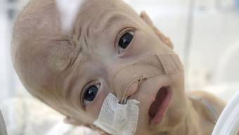 Ein rumänisches Baby auf der Intensivstation. EU-weit hat Rumänien neben Malta die höchste Säuglingsterblichkeitsrate. Bei einem EU-Durchschnitt von 3,6 - ungefähr wie in der Schweiz - liegt sie bei 6,7. (Archivbild)
