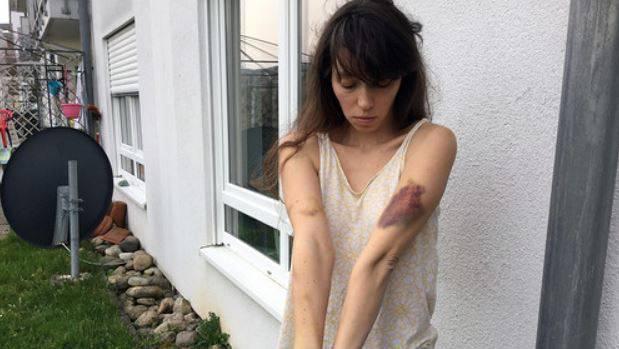 Natalja Sokol zeigt ihre Verletzungen nach dem Angriff der Linksautonomen.