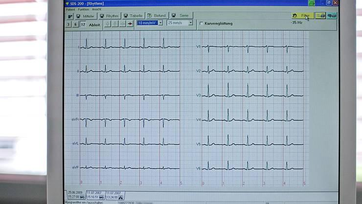 Das Design mechanischer Herzklappen ist nicht optimal. Ihre Form führt zu Verwirbelungen im Blut, was das Risiko für Gerinnsel und Schlaganfälle erhöht. (Symbolbild)