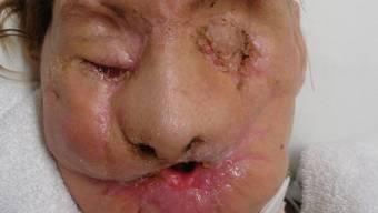 Resultat einer Schimpansen-Attacke: eine Amerikanerin hat nun ein neues Gesicht (Archiv)