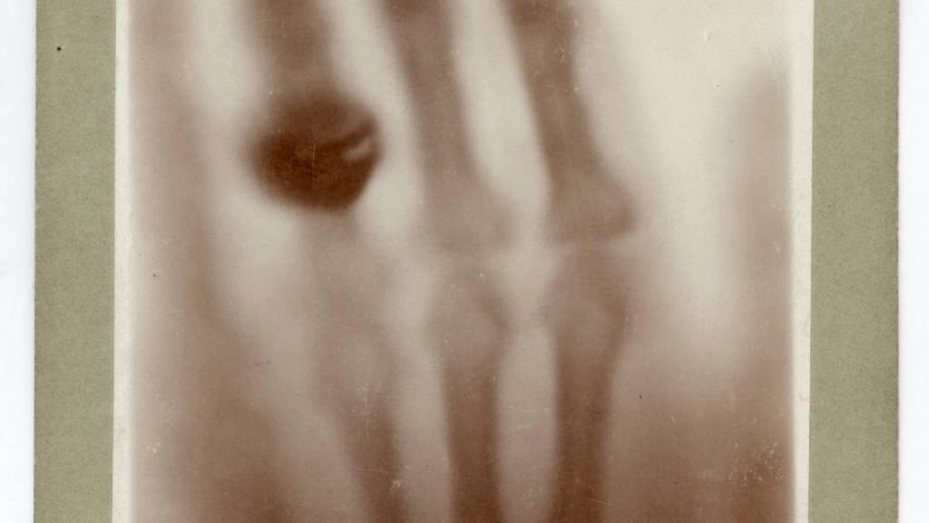 Das unlösbare Mysterium um Anna Bertha Röntgens Ring