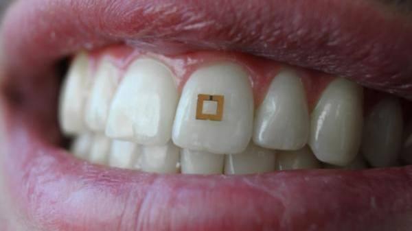 Vernetzt: Sensor auf Zahn misst Essgewohnheiten