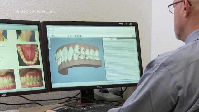 Zahnkorrekturen bei Erwachsenen