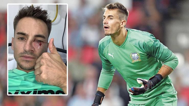 In der Ligapartie gegen seinen Ex-Klub Paphos zog sich Joël Mall mehrere Gesichtsbrüche zu.