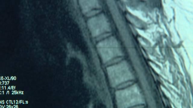 Chiropraktor - Heilen mit dem Knacks