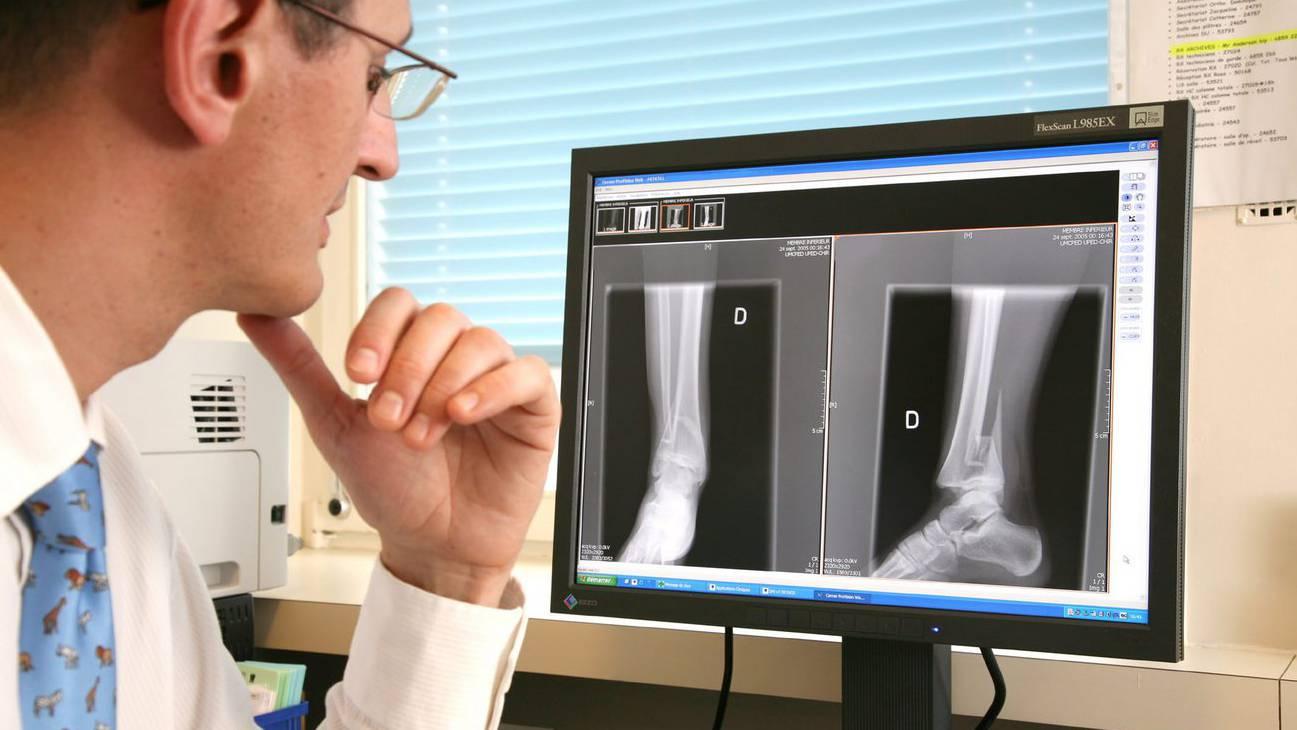 Knochen Mensch Röntgen
