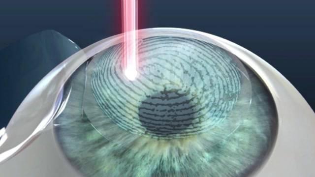 Alternativen zu Brille und Kontaktlinsen