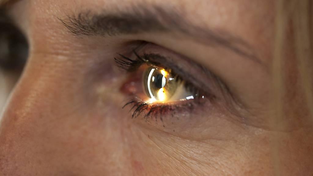 Novartis kauft Schweizer Augenheilkunde-Unternehmen Arctos Medical