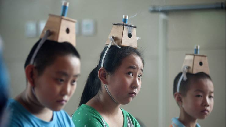 Kinder werden nach einer Methode der traditionellen chinesischen Medizin gehandelt.