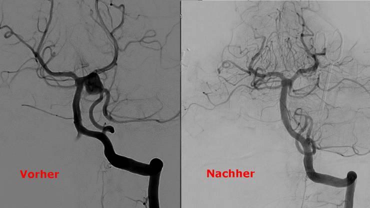 Links: Angiografie des Aneurysma an der Arteria basilaris im Gehirn von Sascha Stoppa (obere Bildmitte). Rechts: Nach der Operation ist die Aussackung nicht mehr sichtbar.  KSAFandino