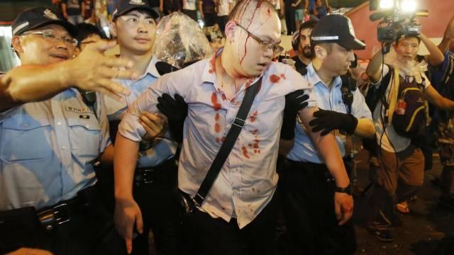 Polizei führt in Hongkong einen verletzten Demonstranten ab