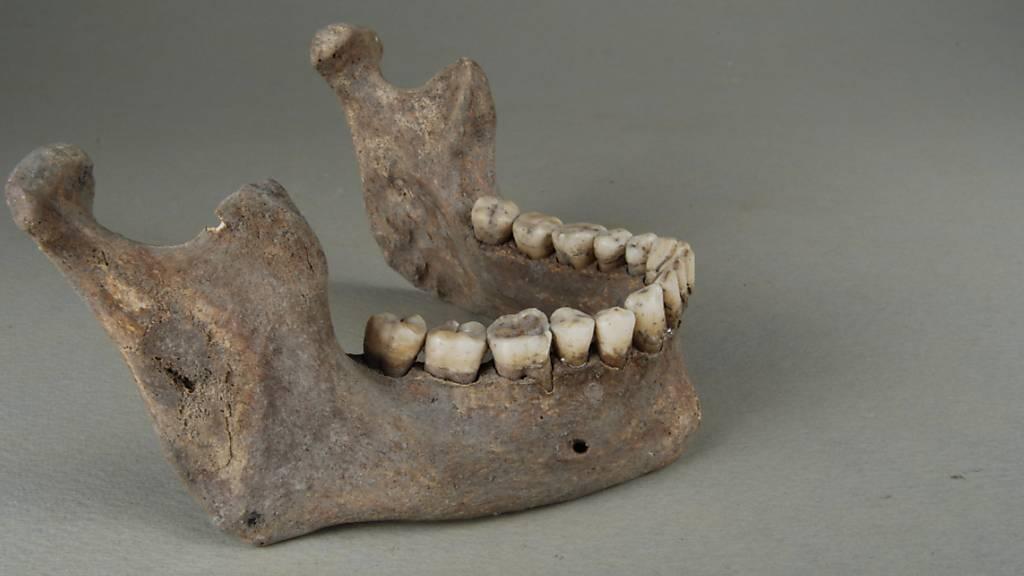 Syphilis grassierte wohl schon vor Kolumbus in Europa